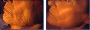schoonheidssalon-soraya-meso-model-na-20-behandelingen